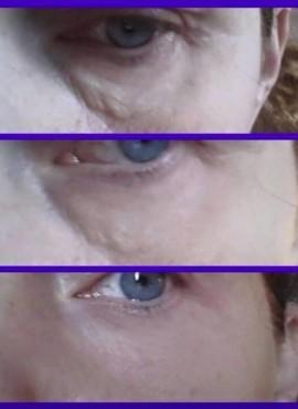 Je ziet de lijntjes en kringen verdwijnen met de Jeunesse huidproducten