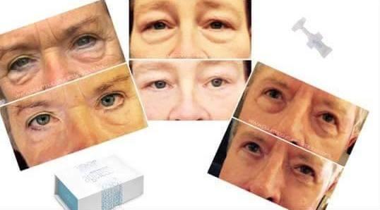 Jeunesse producten gebruiken wij voor huidverjonging