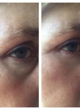 Het resultaat van het gebruik van Jeunesse huidproducten